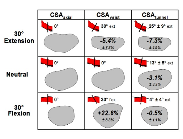 Evaluation of the Carpal Tunnel Based on 3-D Reconstruction from MRI