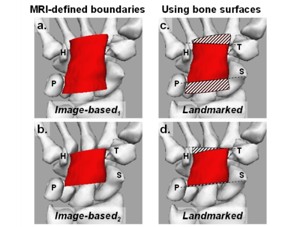 The Effect of Landmarks and Bone Motion on Posture-Related Changes in Carpal Tunnel Volume