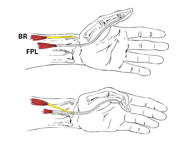 A Simulation Analysis of the Combined Effects of Muscle Strength and Surgical Tensioning on Lateral Pinch Force Following Brachioradialis to Flexor Pollicis Longus Transfer