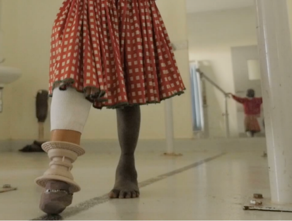 3D-Printed Prosthetics for the Developing World